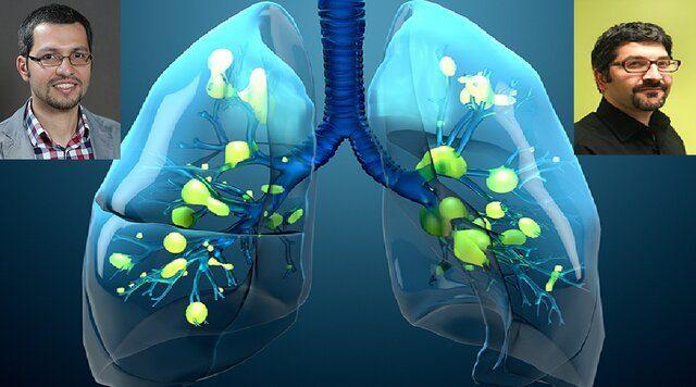 با همکاری دانشمندان ایرانی محقق شد کشف یک واکنش سلولی غیرمنتظره در ریه افراد مبتلا به کووید-۱۹